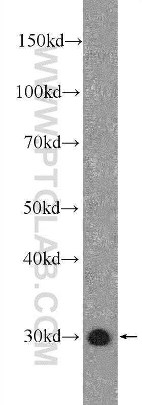 14503-1-AP;rat liver tissue
