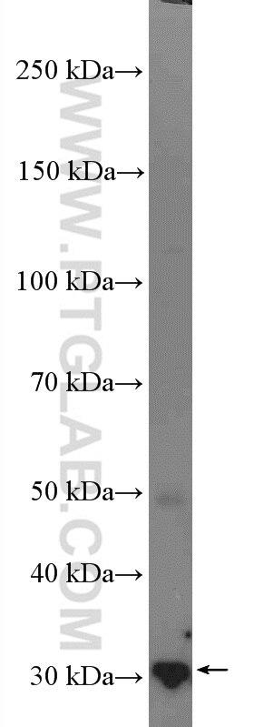14503-1-AP;mouse liver tissue