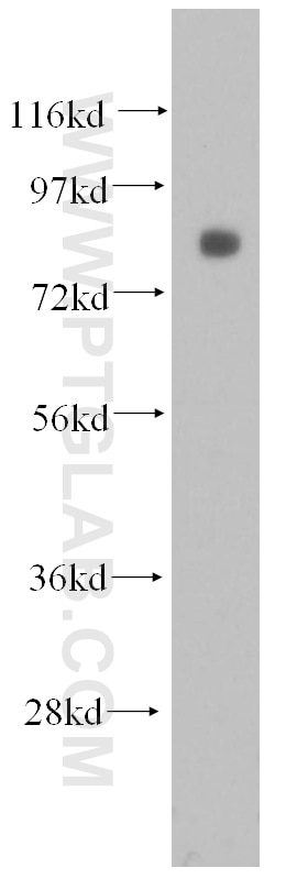 WB analysis of Raji using 51007-1-AP