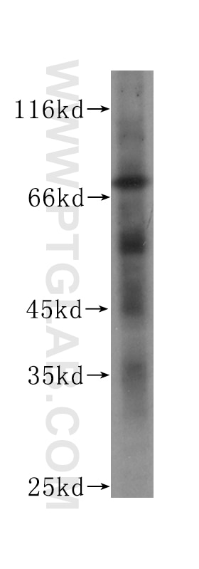 60153-1-Ig;HeLa cell