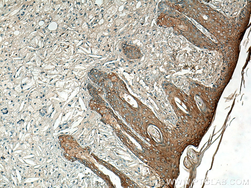 IHC staining of mouse skin using 27387-1-AP