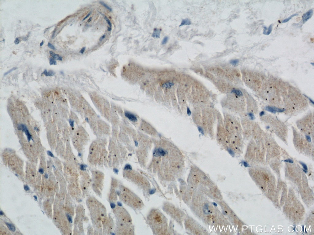 IHC staining of human heart using 22673-1-AP