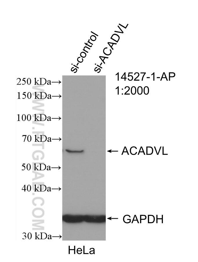 WB analysis of HeLa using 14527-1-AP