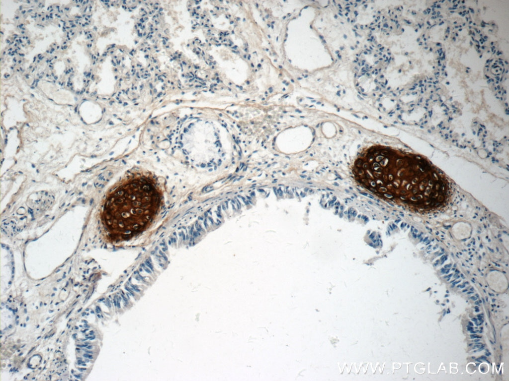 IHC staining of human lung using 13880-1-AP