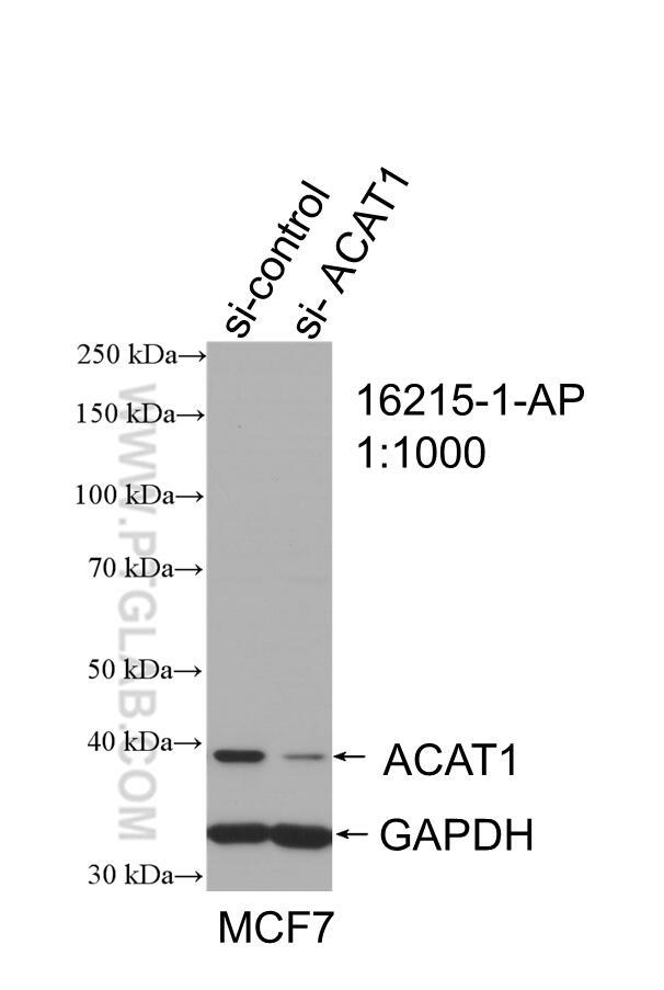 WB analysis of MCF-7 using 16215-1-AP