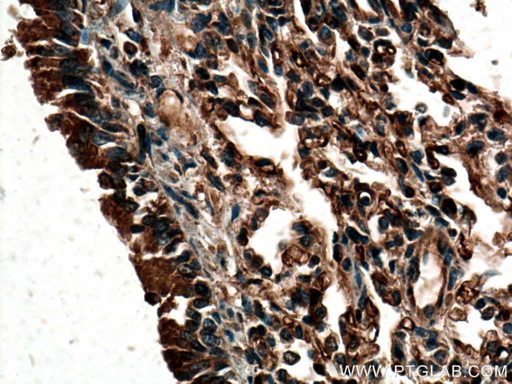 IHC staining of human lung using 24743-1-AP
