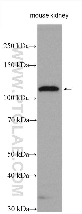 ACE2 Polyclonal antibody