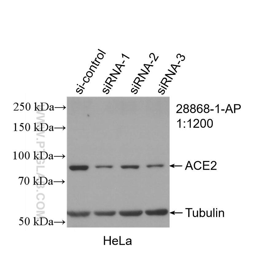 WB analysis of HeLa using 28868-1-AP