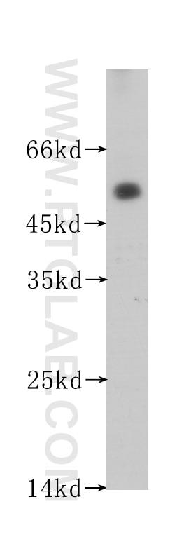 60176-1-Ig;human testis tissue