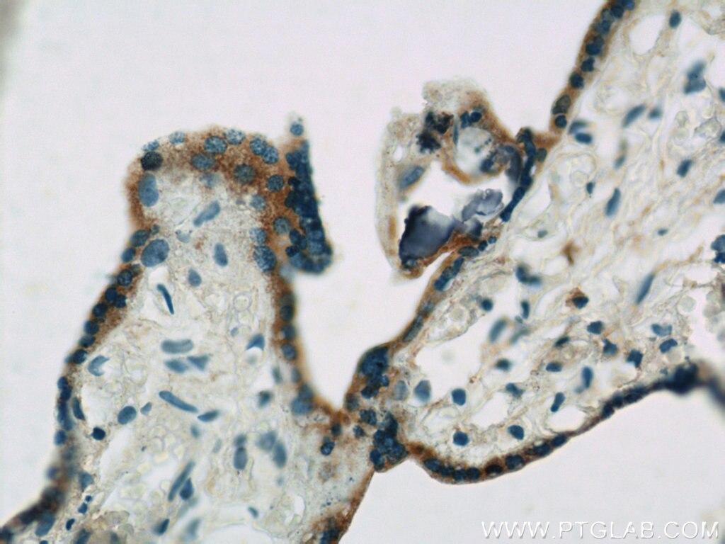 IHC staining of human placenta using 22401-1-AP