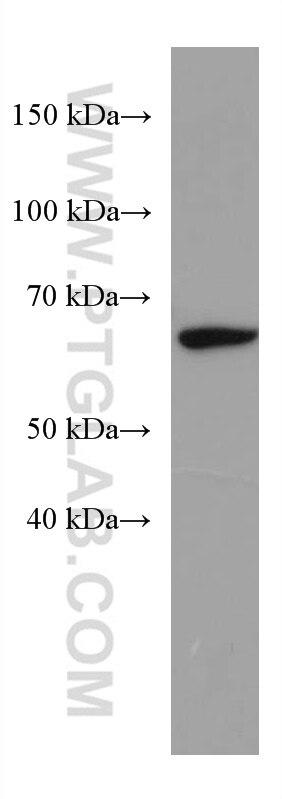 WB analysis of rat liver using 67334-1-Ig