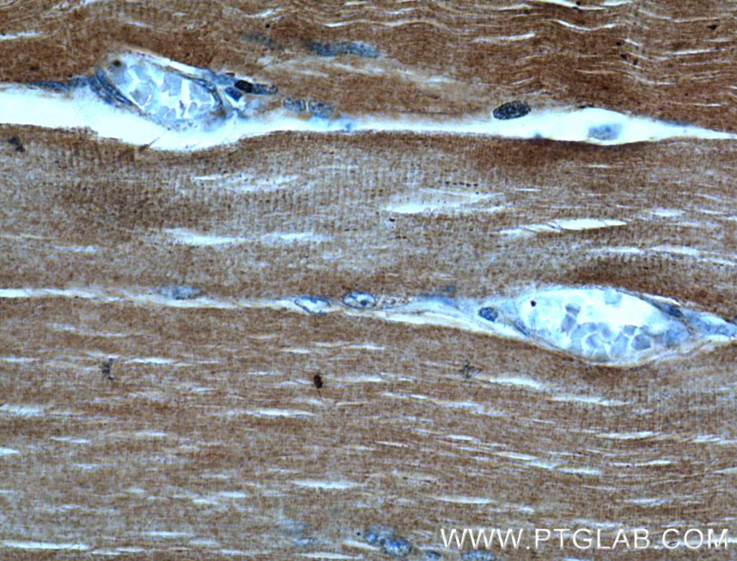 IHC staining of human skeletal muscle using 17521-1-AP