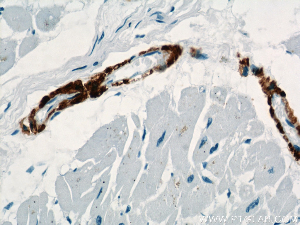 IHC staining of human heart using 23081-1-AP