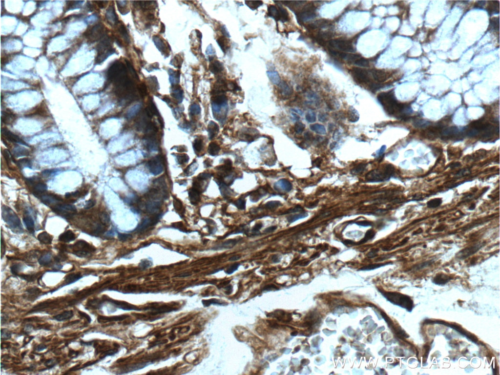 IHC staining of human colon using 20536-1-AP