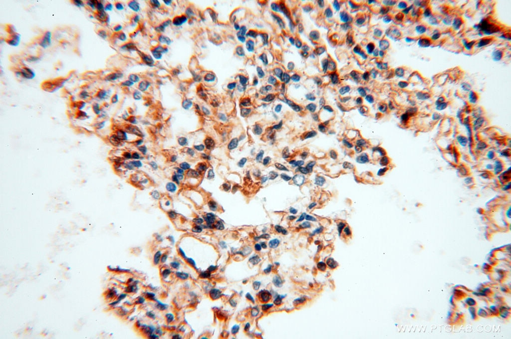 60008-1-Ig;human lung tissue