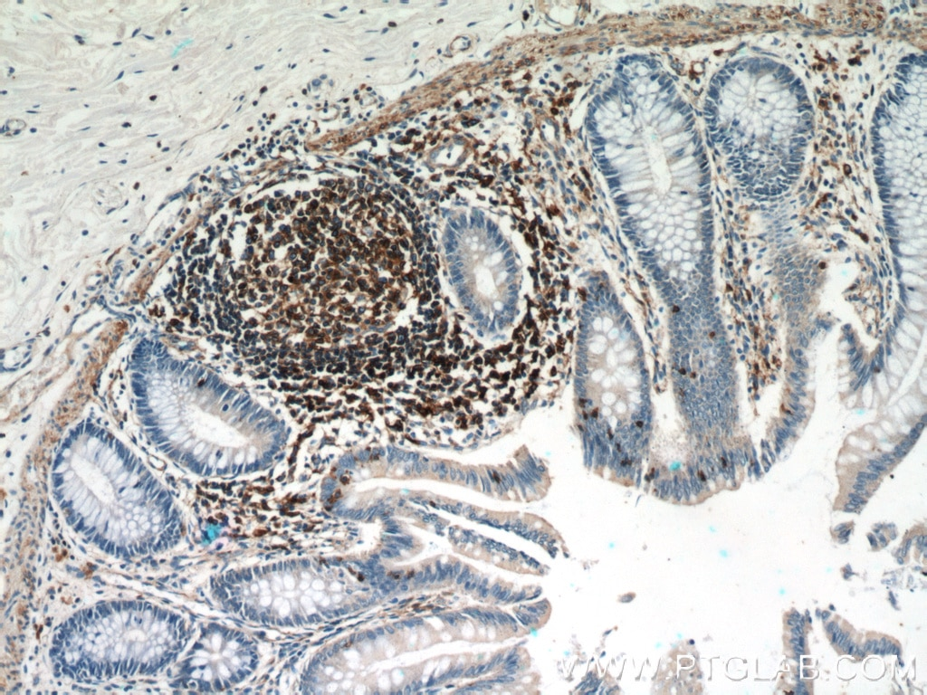 IHC staining of human colon using 60008-1-Ig