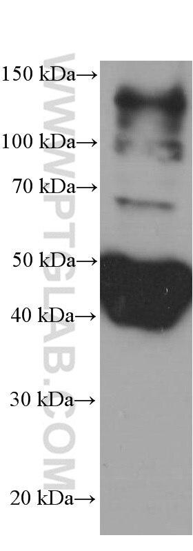 60008-1-Ig;whole Nematode tissue