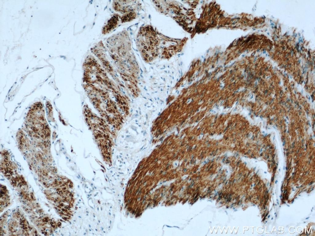 23082-1-AP;human small intestine tissue