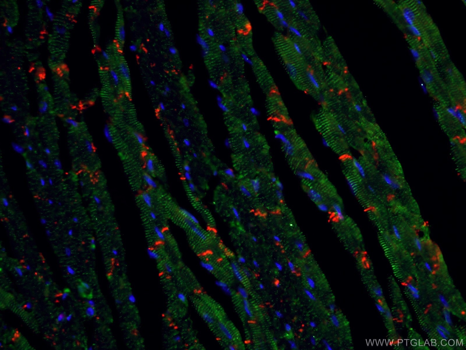 IF Staining of mouse heart using 11313-2-AP