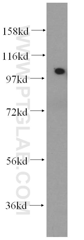 ACTN2 Polyclonal antibody