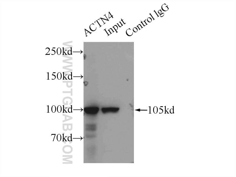 IP experiment of HeLa using 19096-1-AP