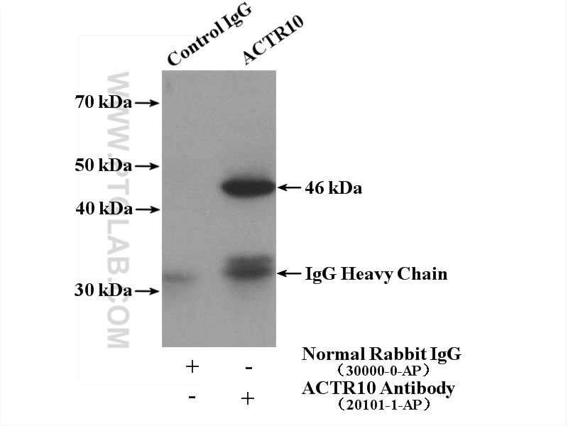 IP experiment of mouse brain using 20101-1-AP