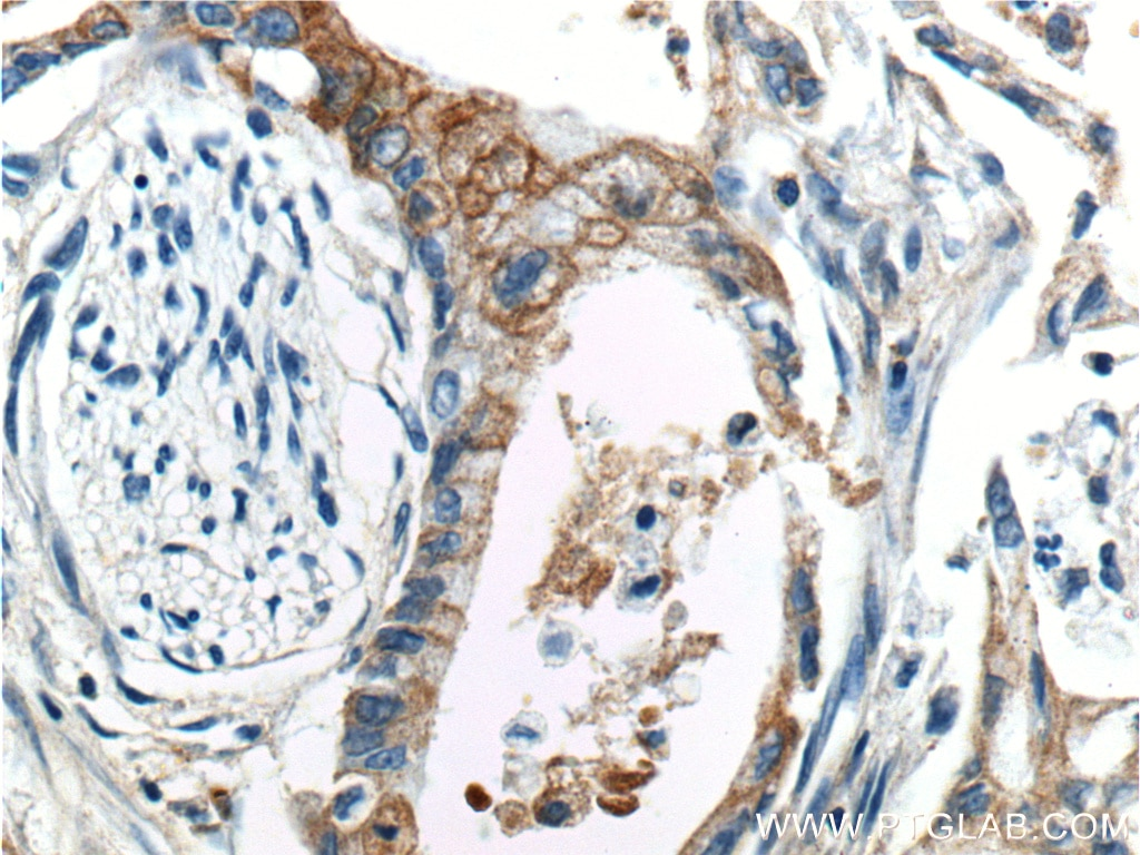 IHC staining of human pancreas cancer using 20259-1-AP