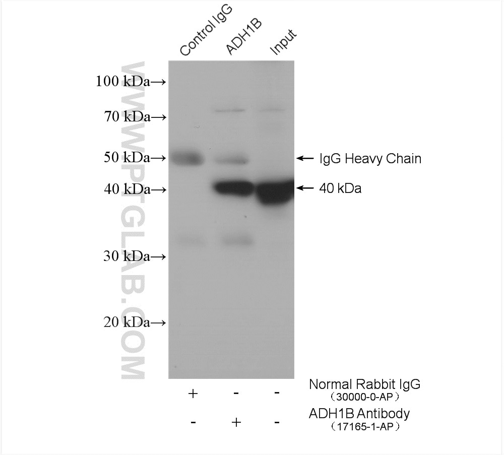 IP experiment of mouse liver using 17165-1-AP
