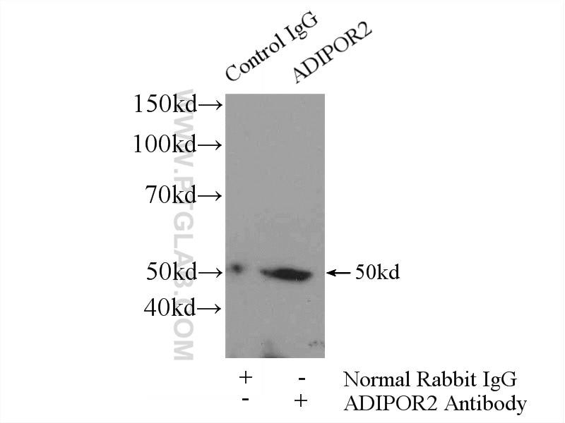 IP experiment of HeLa using 14361-1-AP