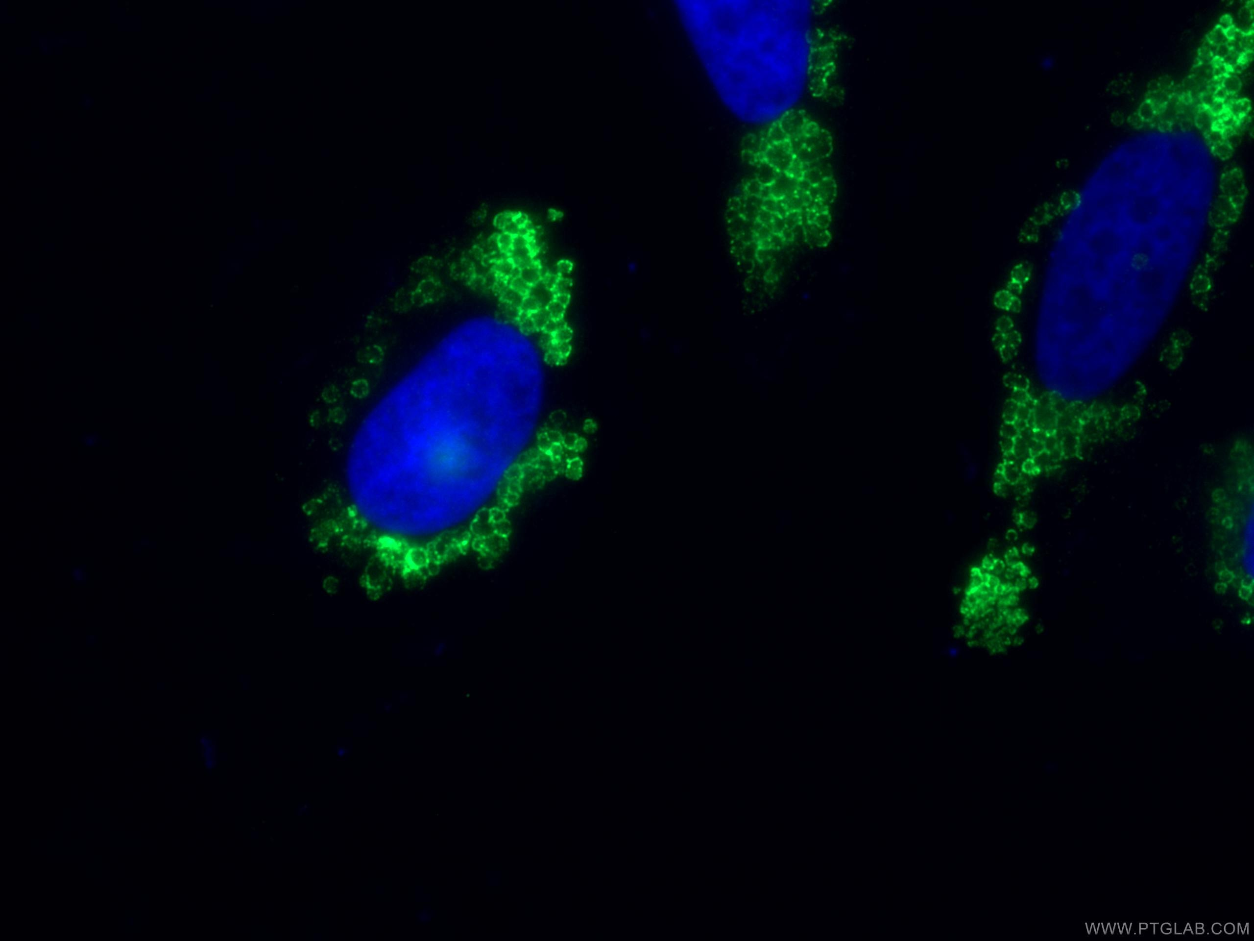 IF Staining of HeLa using 15294-1-AP