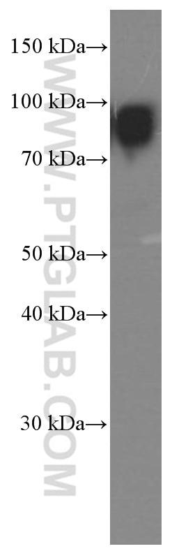 66113-1-Ig;human plasma tissue