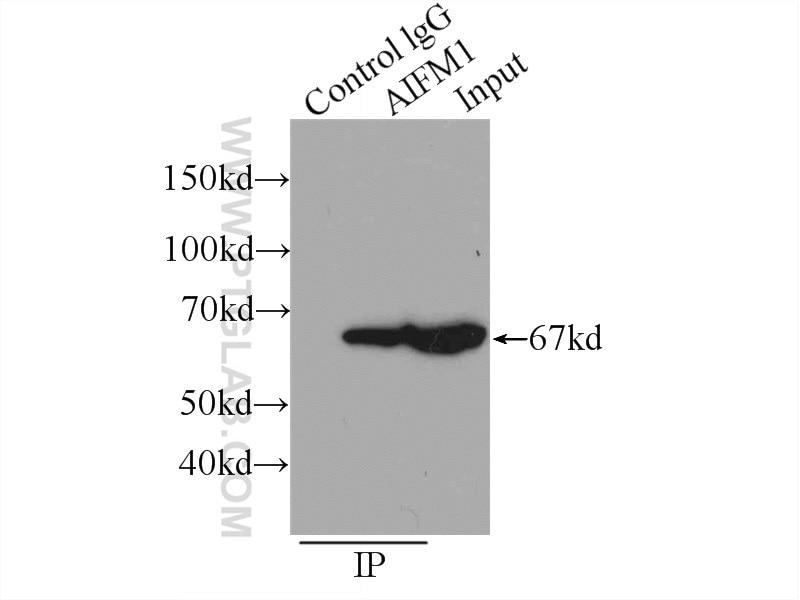 IP experiment of HeLa using 17984-1-AP