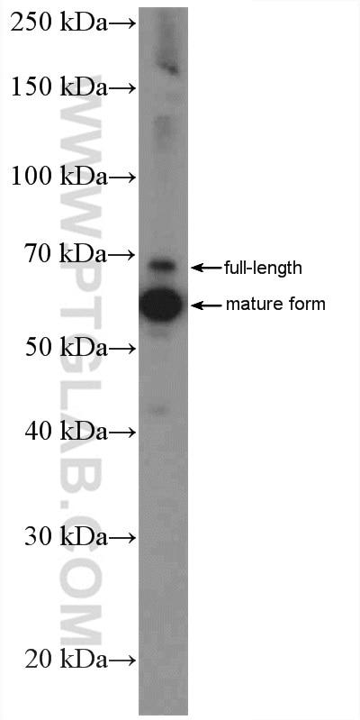 WB analysis of HeLa using 17984-1-AP