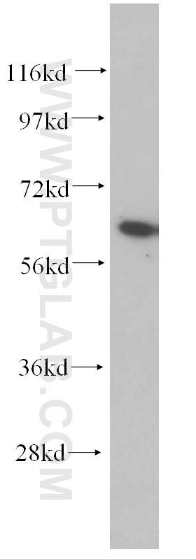 AKT Polyclonal antibody