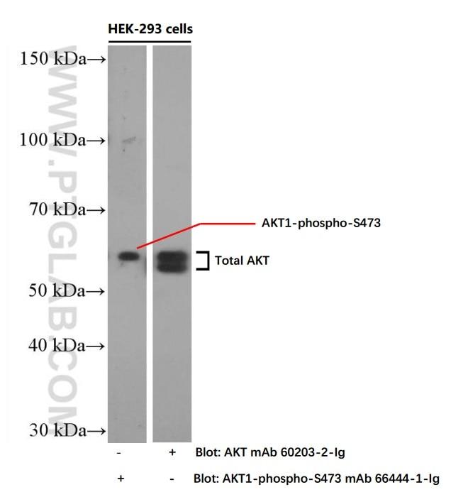 Phospho-AKT (Ser473)