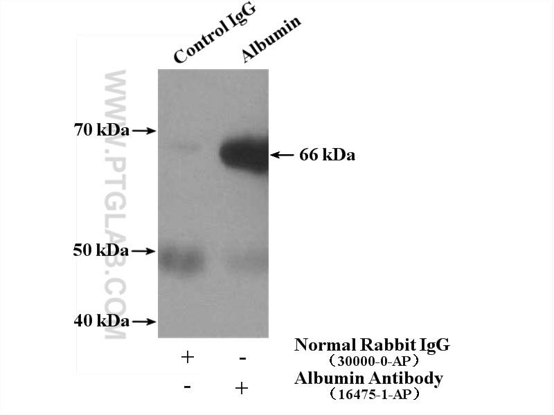 Albumin IP 16475-1-AP Albumin Antibody  ALB, albumin, DKFZp779N1935, GIG42, HSA, PRO0883, PRO0903, PRO1341, PRO1708, PRO2044, PRO2619, PRO2675, Serum albumin, UNQ696/PRO1341;IP