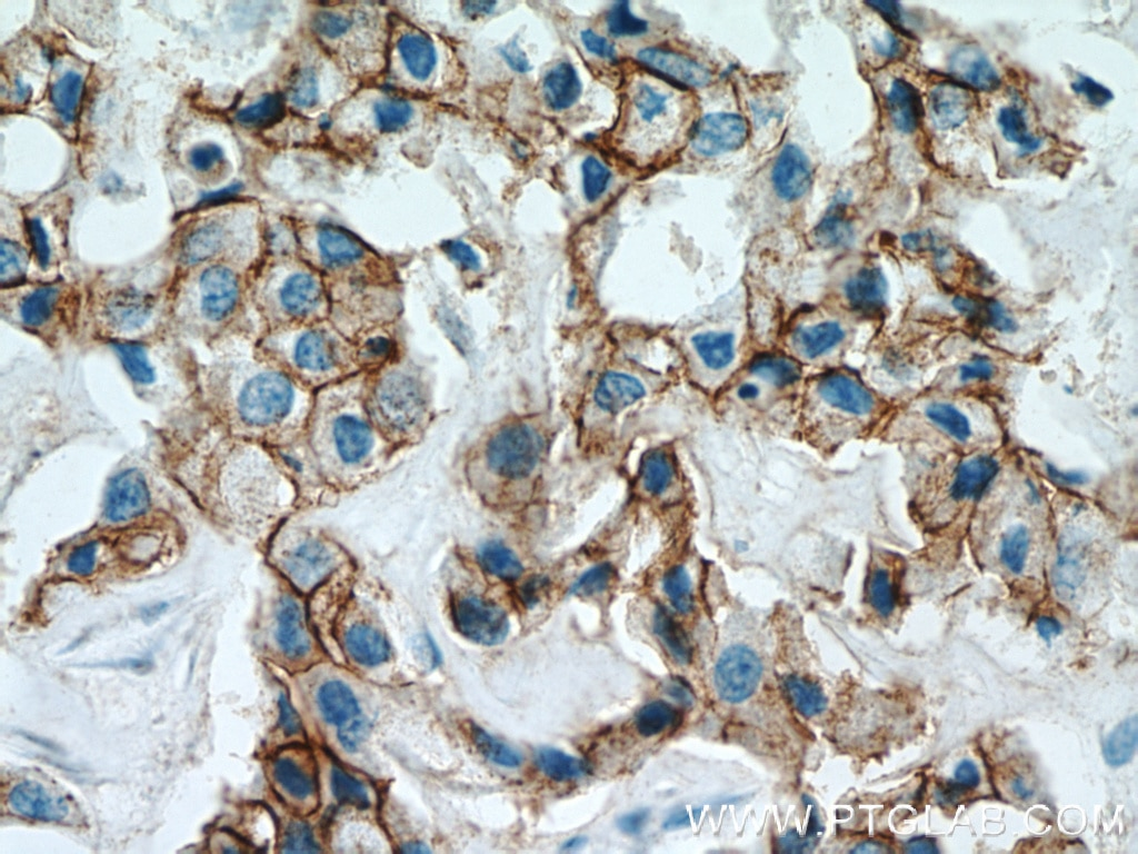IHC staining of human breast cancer using 21972-1-AP