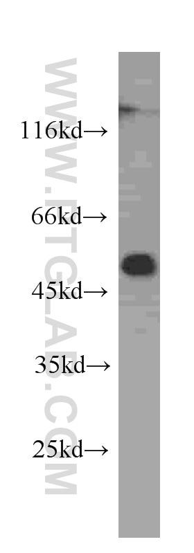 WB analysis of MCF-7 using 60171-1-Ig