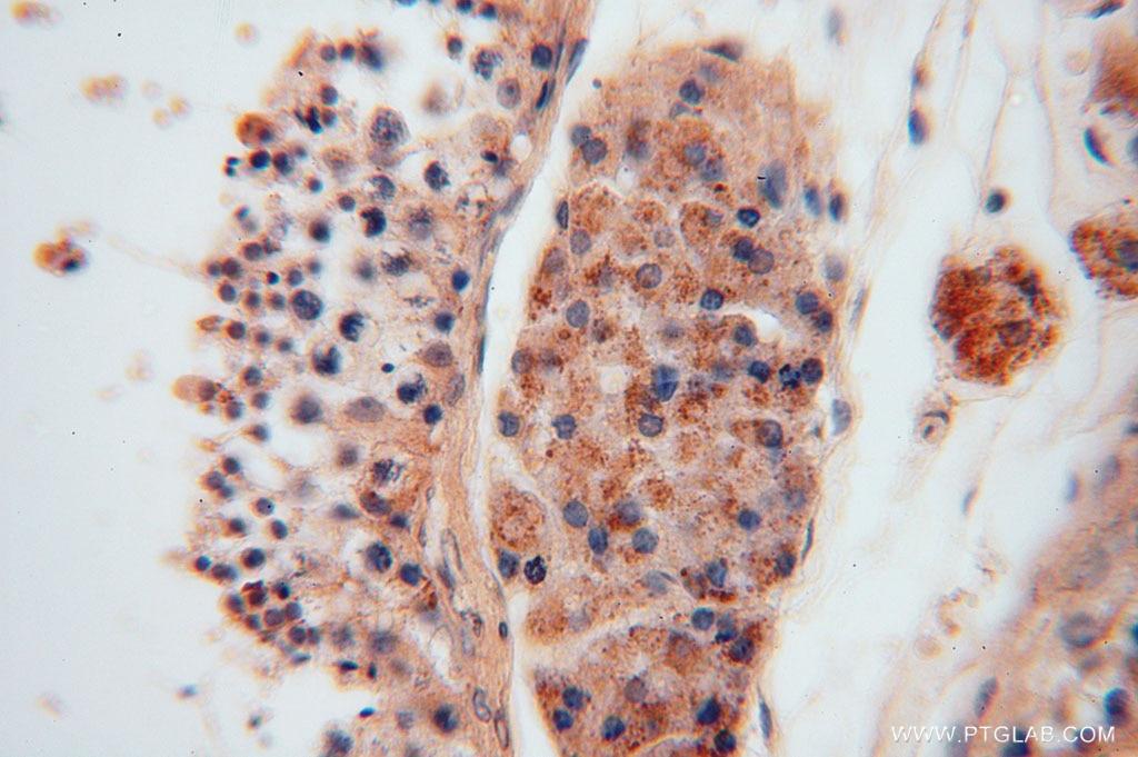 IHC staining of human testis using 15560-1-AP