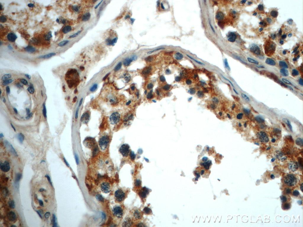 IHC staining of human testis using 22220-1-AP