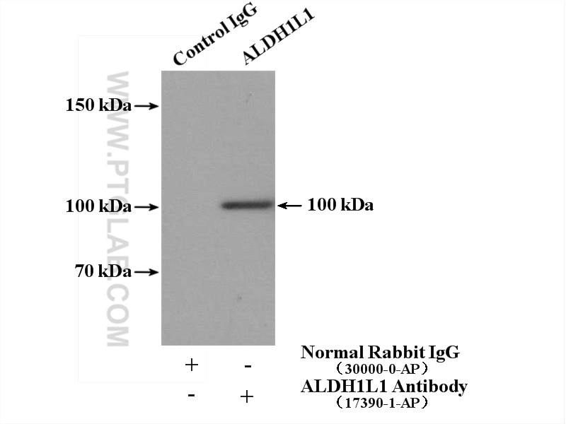 IP experiment of mouse liver using 17390-1-AP