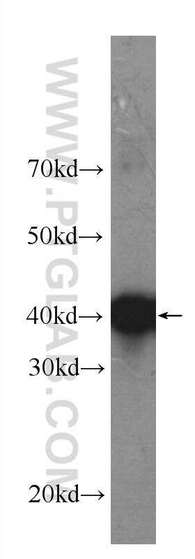 WB analysis of Ag21493 using 60321-1-Ig