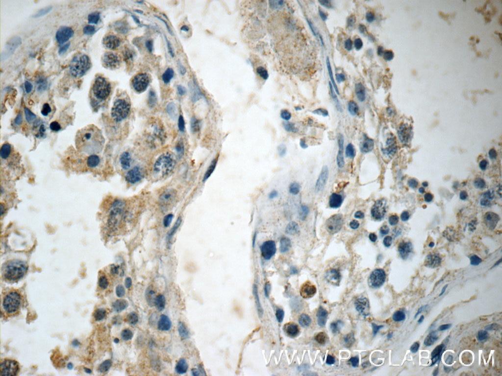 IHC staining of human testis using 15470-1-AP