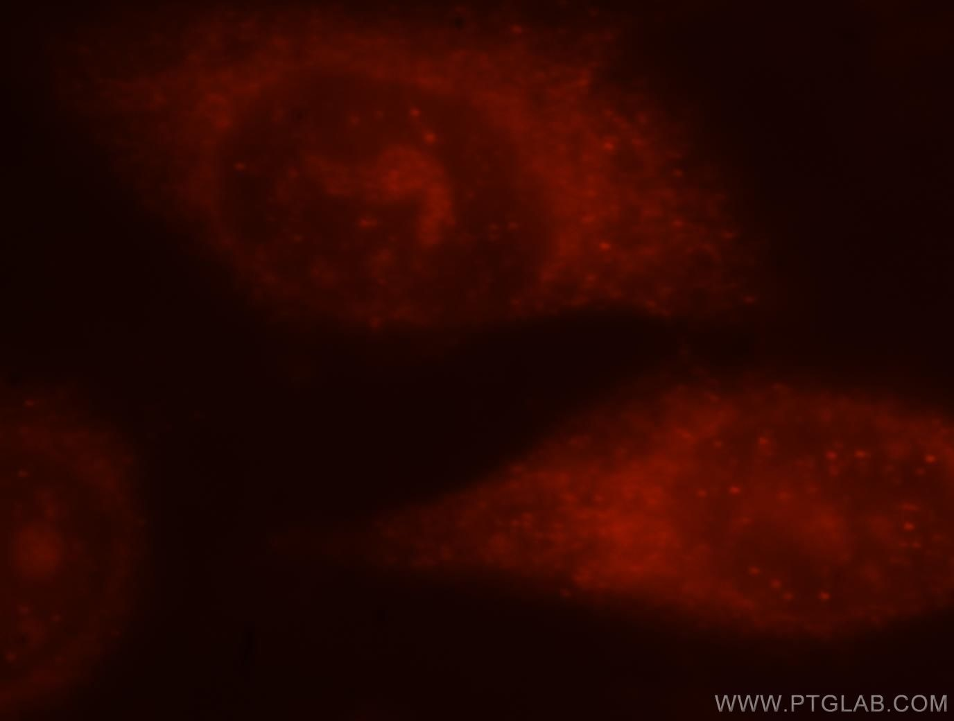 ALOX5 Immunofluorescence IF 10021-1-Ig ALOX5 Antibody 5-LO; 5-LOX; 5LPG; LOG5; MGC163204