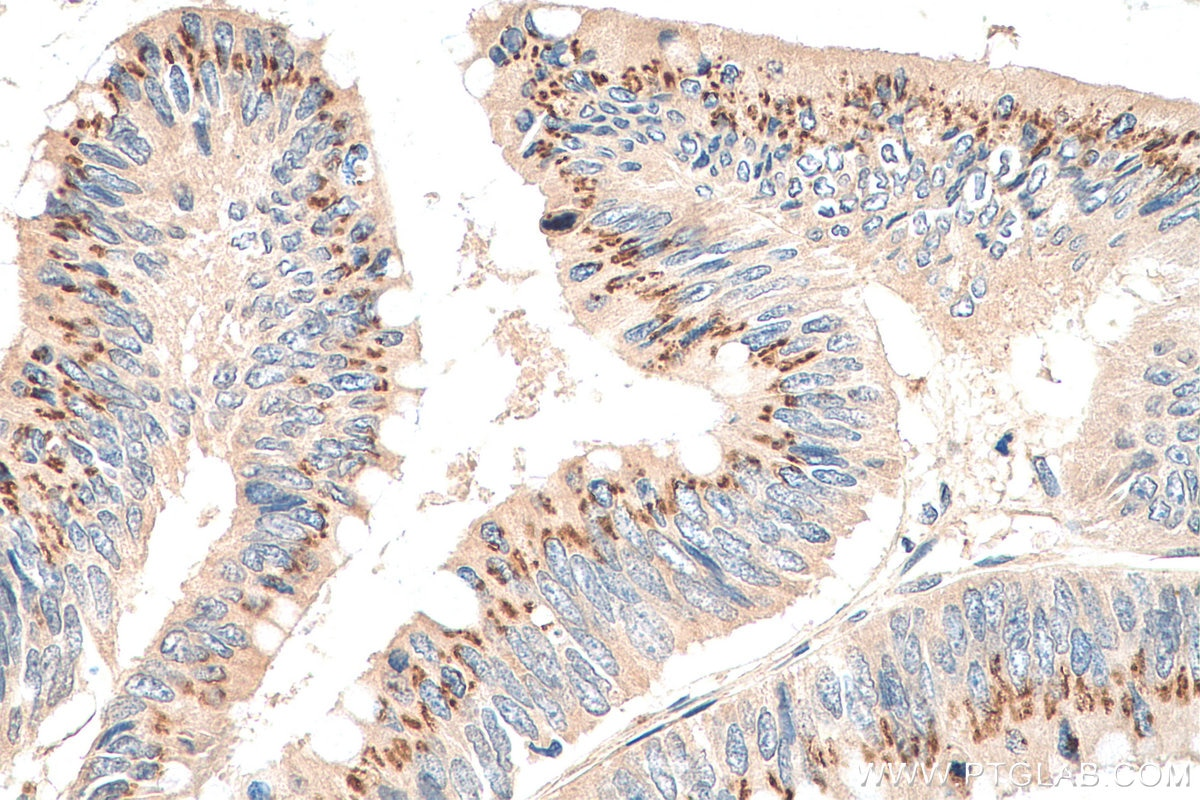 IHC staining of human colon cancer using 11187-1-AP
