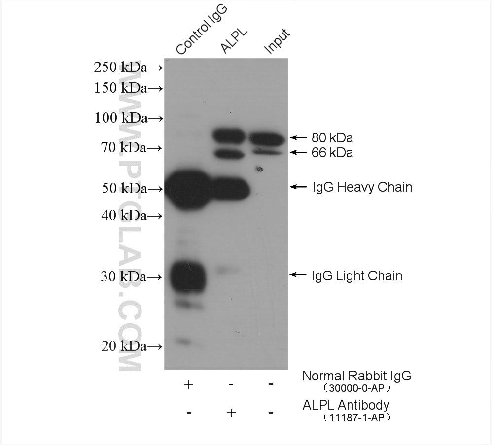 IP experiment of HeLa using 11187-1-AP