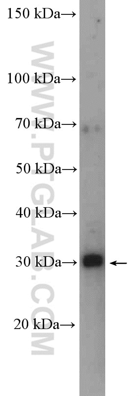 WB analysis of HeLa using 16690-1-AP