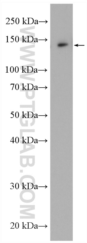 WB analysis of MCF-7 using 13762-1-AP