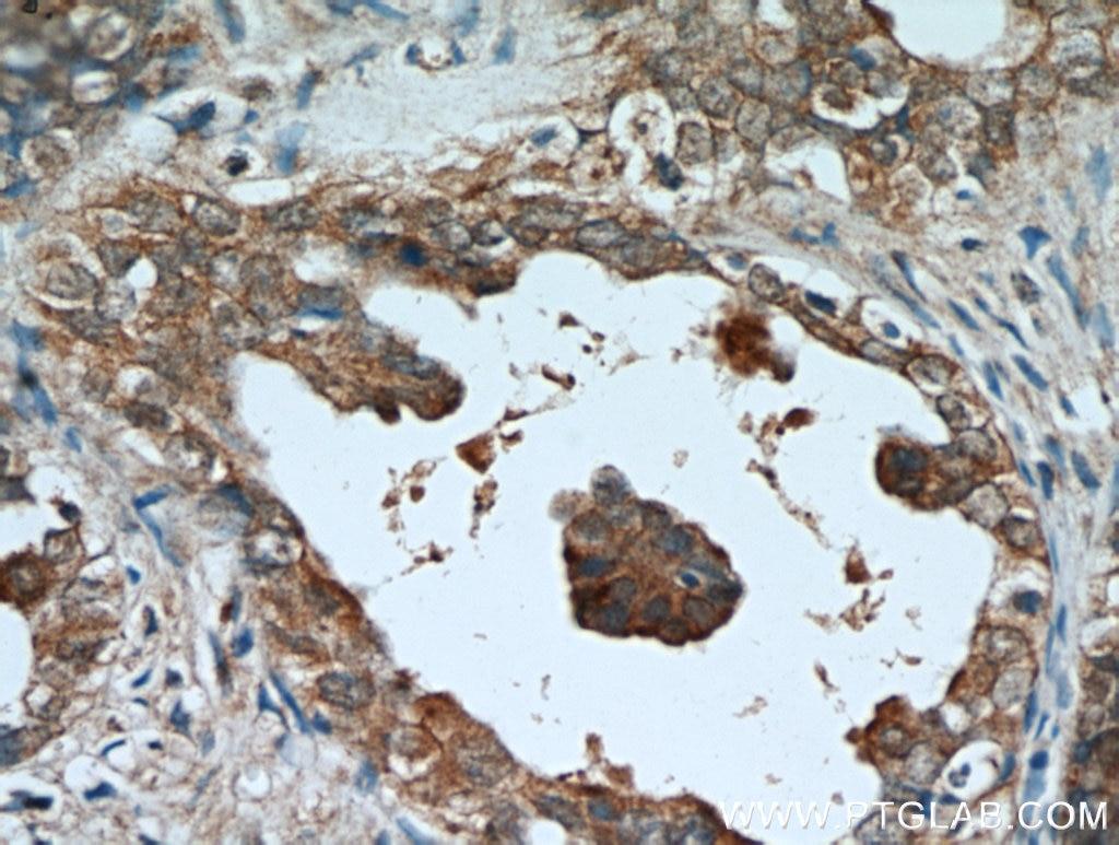 AMH Polyclonal antibody