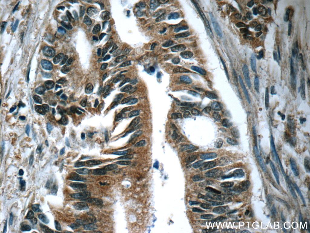 IHC staining of human pancreas cancer using 66133-1-Ig